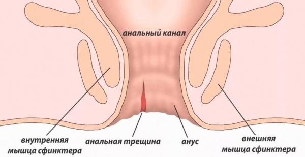 Мази при анальной трещине у ребенка, взрослых эффективные при ГВ, геморрое, беременности