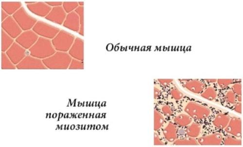 Двуглавая мышца бедра. Анатомия, функции, иннервация, причины боли