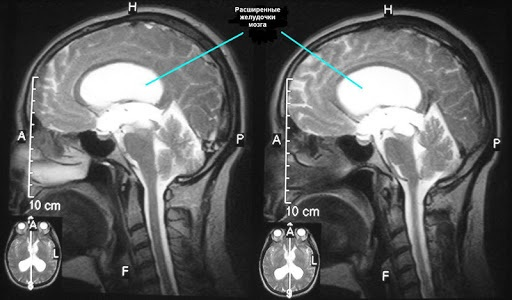 МРТ головы. Что показывает, как делают, в чем разница с контрастом и без, подготовка, показания, противопоказания