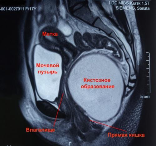 МРТ с контрастом брюшной полости. Что показывает, подготовка к исследованию, памятка для пациента, цена