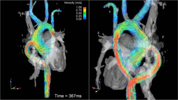 МРТ сердца. Что показывает с контрастированием и без, как делают, показания