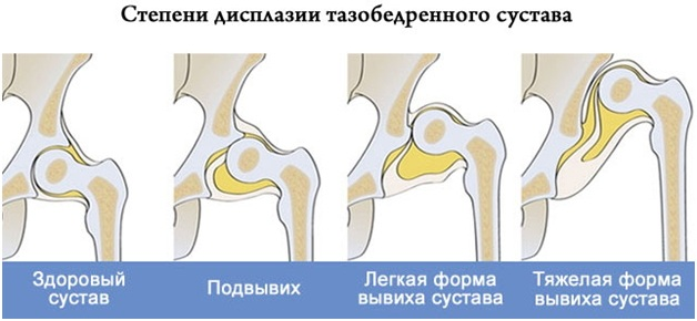 МРТ тазобедренного сустава. Цена, что показывает, как делают, подготовка у взрослых, детей