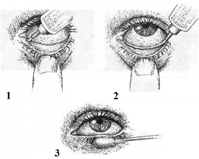 Офтагель (Oftagel) глазные капли. Цена, инструкция, аналоги дешевые