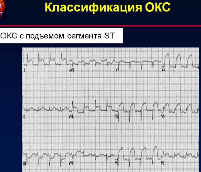 ОКС c подъемом сегмента ST. Клинические рекомендации, симптомы, лечение