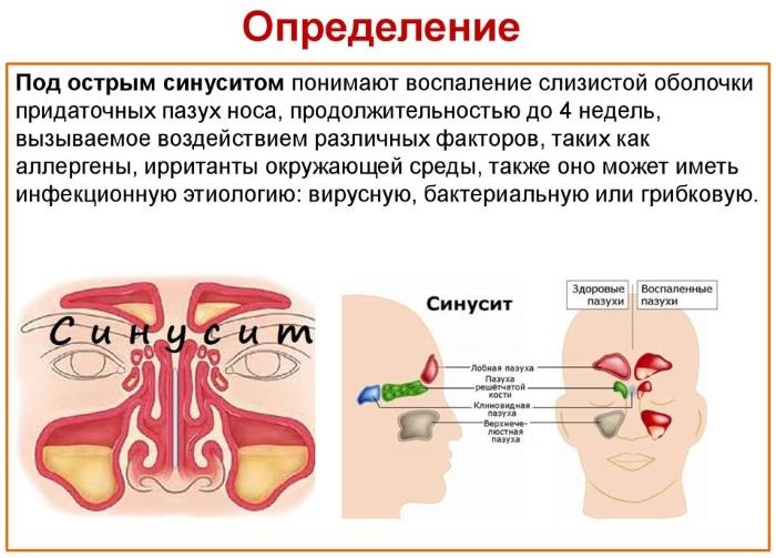 Острый синусит. Что это такое, симптомы, лечение у взрослых, детей