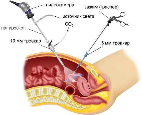 Острый живот в гинекологии, при беременности. Симптомы, боль внизу живота, диагностика, неотложная помощь