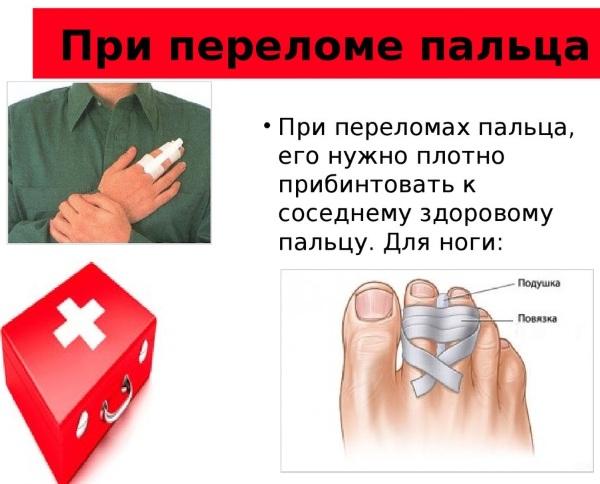 Перелом большого пальца на ноге. Симптомы, сколько заживает, как вылечить, нужен ли гипс, реабилитация