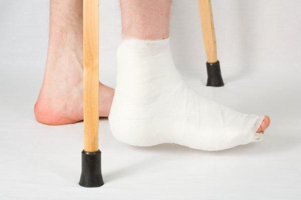 Перелом лодыжки реабилитация после снятия гипса