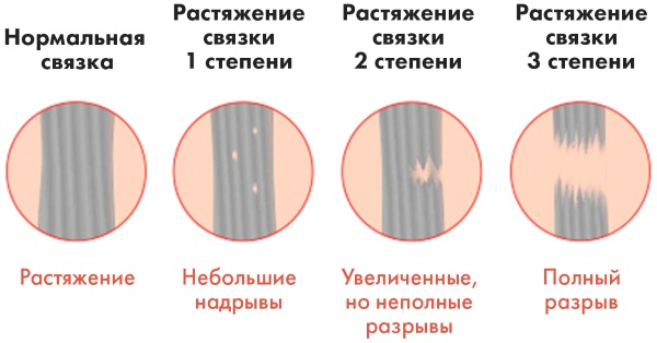 Разрыв сухожилий плечевого сустава. Лечение после операции народными средствами, симптомы, как заживает