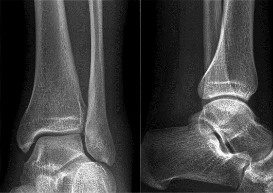 Рентген голеностопного сустава. Что показывает, фото, норма, подготовка, цена