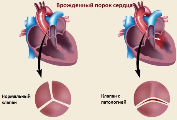 Сердечно-сосудистые заболевания. Список, что это такое, симптомы, статистика, какие бывают, причины, профилактика