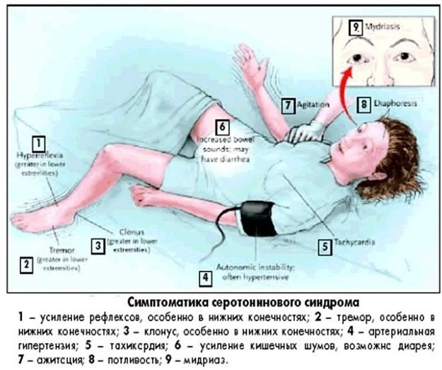 Серотониновый синдром при приеме антидепрессантов. Что это такое, симптомы, лечение