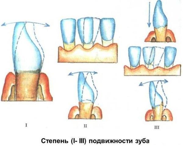Шатаются зубы у взрослого. Причины, лечение, чем укрепить десна, медикаменты