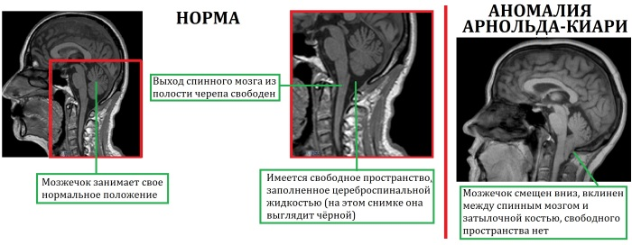 Синдром Арнольда-Киари. Что это, степени, симптомы у взрослых, детей, лечение, последствия