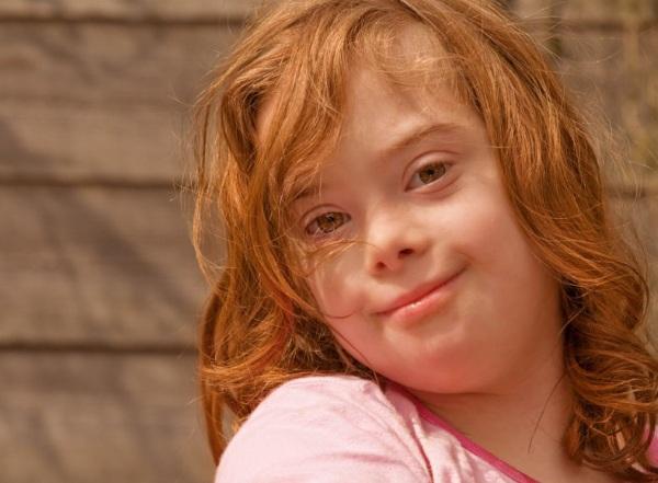 Синдром Дауна. Фото взрослых, детей, кариотип, причины, симптомы, признаки, лечение, диагностика, риск