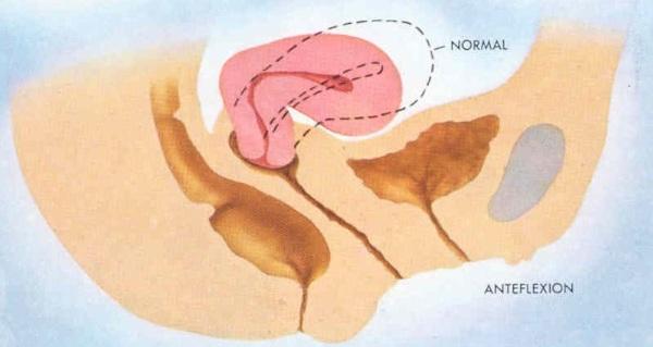 Тело матки в anteflexio versio. Что это, норма у взрослого, беременных