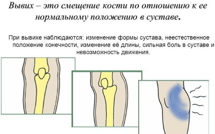 Травмы опорно-двигательного аппарата. Причины, первая помощь, классификация, виды