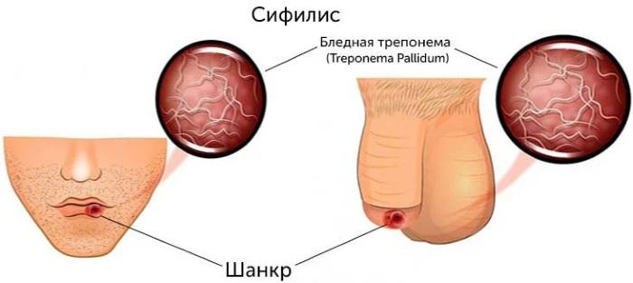 Treponema pallidum (бледная трипонема) антитела суммарные. Что это такое, что значит положительный, отрицательный анализ, расшифровка