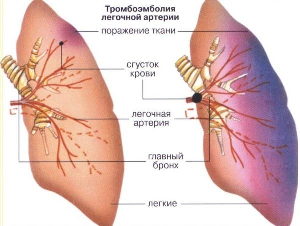 Тромбоэмболия легочной артерии. Симптомы, признаки, диагностика, лечение