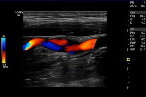 УЗДГ брахиоцефальных артерий. Что это такое, как делают, что показывает, подготовка, расшифровка