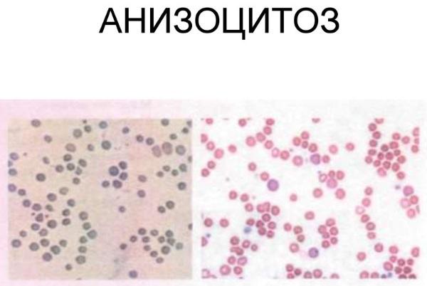 Анизоцитоз в общем анализе крови у взрослых, женщин, ребенка. Причины пониженного, повышенного
