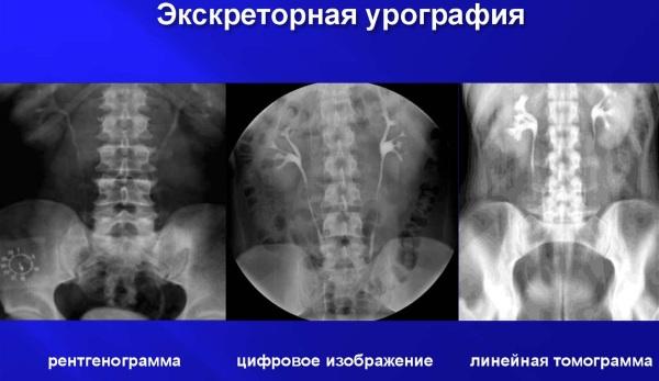 Экскреторная урография препараты