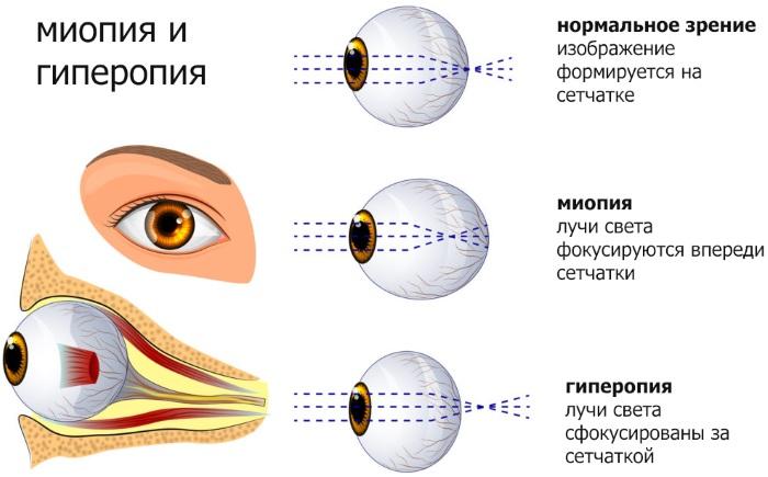 Гиперметропия (дальнозоркость) слабой степени у ребенка, средней, тяжелой. Причины, лечение