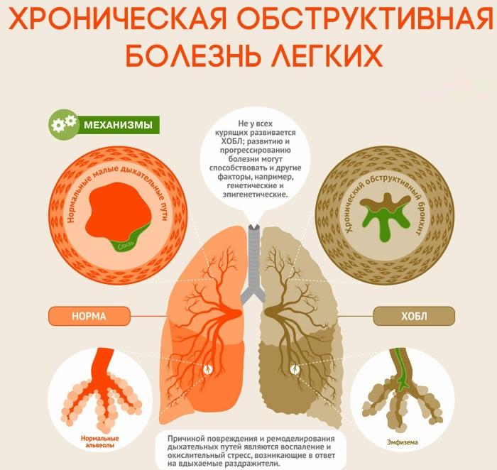 Катаральное воспаление. Что это такое, лечение верхних дыхательных путей, среднего уха, пазух носа