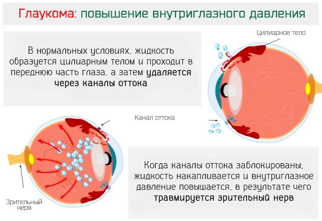 Циклопентолат глазные капли. Инструкция по применению, цена, отзывы