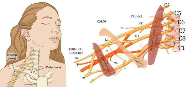 Плексит плечевого нерва. Лечение медикаментозное, симптомы