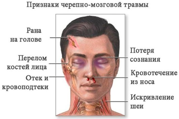 Кровь из уха. Причины у взрослого, ребенка после удара головой, чистки, при отите, без температуры, боли