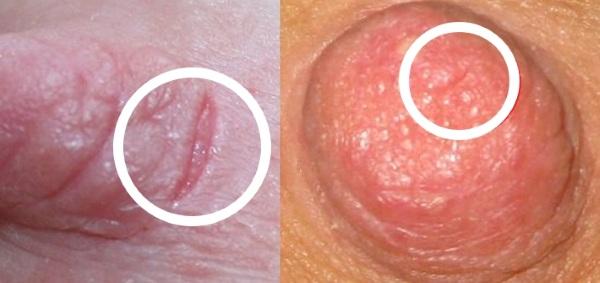 Вазоспазм при грудном вскармливании. Что это такое, симптомы, лечение, причины
