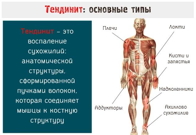 Воспаление (тендинит) сухожилий локтевого сустава. Лечение народными средствами, мазями