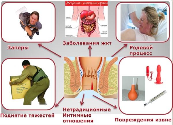 Анальная трещина. Как лечить: иссечение, операция, свечи, мазь, симптомы, диагностика