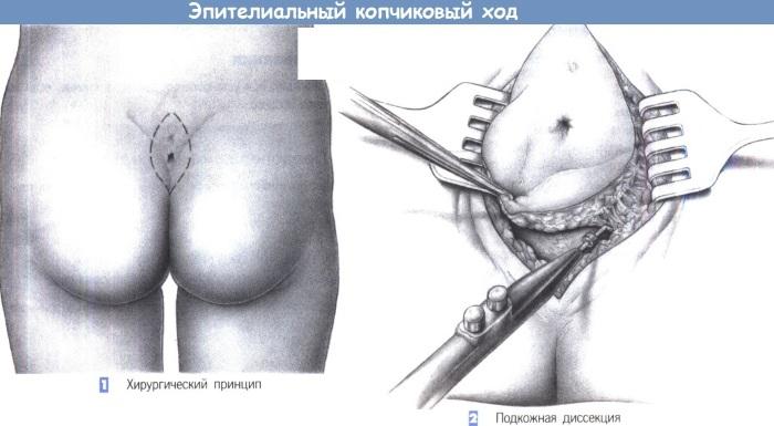 Эпителиальный копчиковый ход (ЭКХ). Фото, чем снять боль, операция, лечение