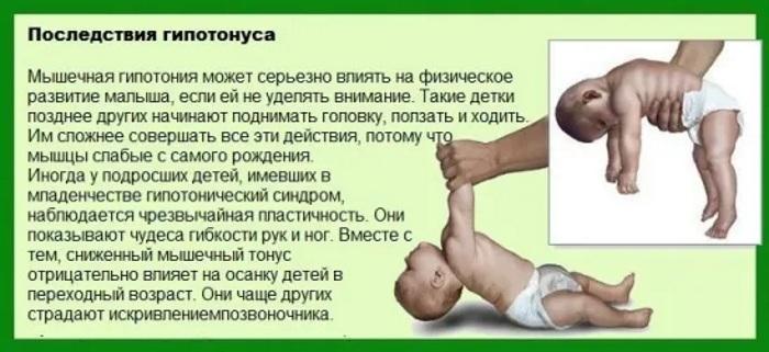 Гипотонус мышц у младенцев, ребенка, взрослых. Что это такое: лица, спины, рук, ног, шеи, симптомы, лечение