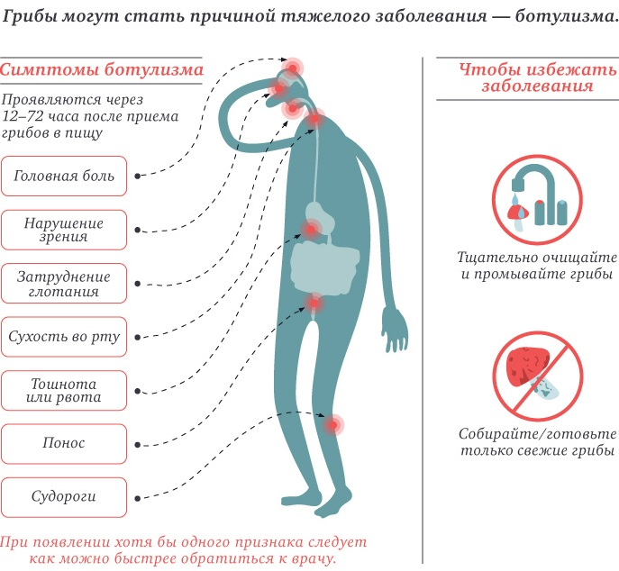 Отравление грибами: симптомы и признаки, диагностика, лечение в стационаре, реанимации, народными средствами. Первая помощь