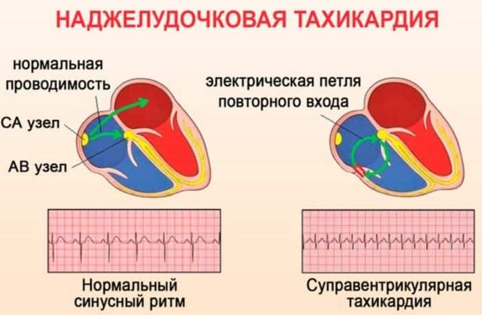 Пульс 180-190-200-210-220 ударов в минуту в состоянии покоя, при беге, нагрузке. Что это значит, причины, лечение взрослого, ребенка