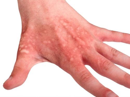 Водянистые пупырышки на руках, ладонях, пальцах. Что это, как лечить