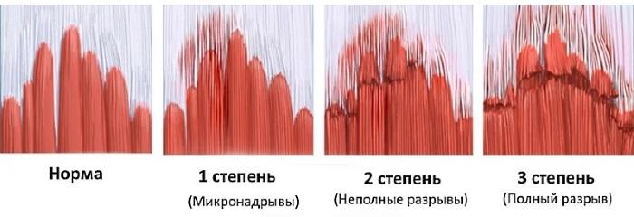 Наружные косые мышцы живота. Функции, анатомия, болит, растяжение, спазм