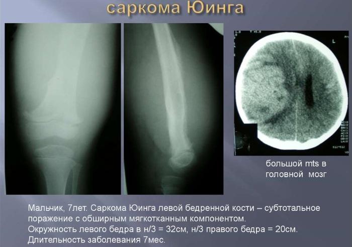 Саркома тазобедренного сустава. Симптомы у детей, что такое остеогенная, синовиальная, Юинга, признаки, лечение, фото
