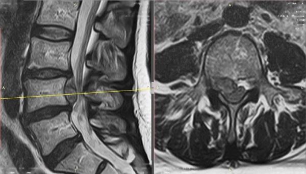 Секвестрация грыжи межпозвоночного диска. Что это такое, симптомы, лечение