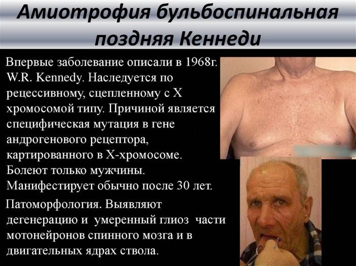 Спинально-мышечная атрофия у детей, взрослых. Что это такое, симптомы, лечение, клинические рекомендации