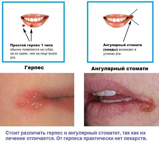 Лечение трещин в уголке рта, заед, если не заживает. Ангулит у детей, взрослых