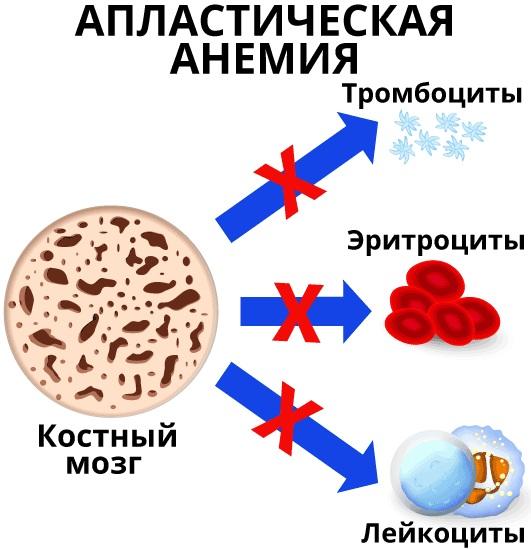 Анемия Даймонда-Блекфена (АДБ) у детей. Что это такое, патогенез, диагностика