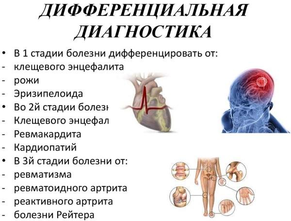 Болезнь Лайма. Что это такое, симптомы, фото, лечение, препараты