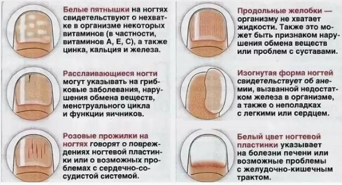 Диагностика по ногтям на руках: таблица диагноза, фото с описанием