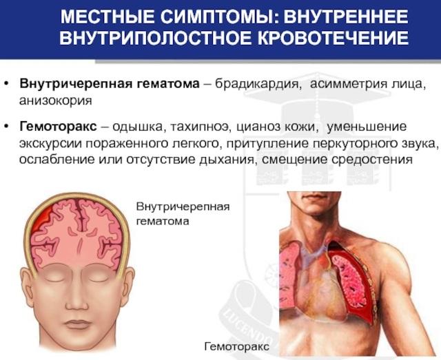 Кровотечение: понятие и виды, причины, первая помощь, способы остановки, лечение