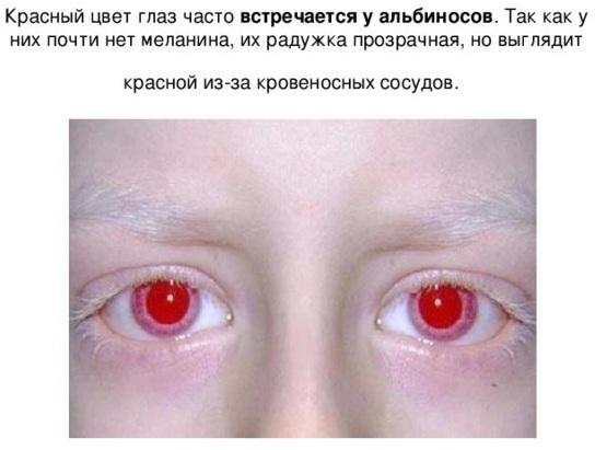 Люди альбиносы с красными глазами настоящие. Фото, внешность, почему такие
