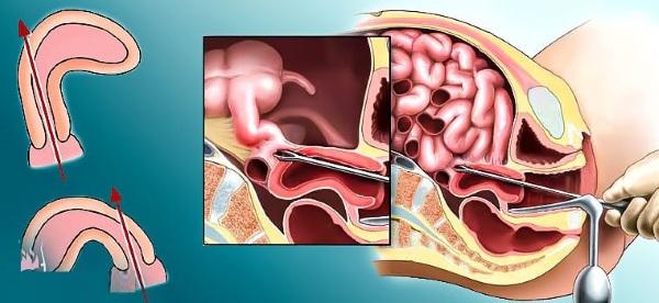 Неотложные состояния в гинекологии. Какие это, первая помощь, клинические рекомендации